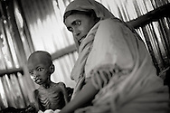 """Dollo Ado, Ethiopia.October2011.<br /> In the hospital in Kobe refugee camp , two tear old Karim Hussein sits on the bed severely malnutritioned while his mother Habiba Ali watches over her small son. He was admitted two days prior, by aid workers in the camp. His general health is so bad that it is very unlikely he would survive. Everyday children are admitted in the same state as Karim, but the mortality numbers have done dramatically down over the last few month due to the big effort of organisation´s working in the area. But daily more refugees arrive and the children are the ones suffering the most from the famine.<br /> """" The drought in the horn of Africa is affecting more than 4.5 million people in Ethiopia. In addition, more than 140.000 refugees from Somalia have settled in camps in the border region between Somalia and Ethiopia. In the area around the border city Dollo Ado, four large refugee camps are already over crowded. A fifth camp is under construction due to the big influx still taking place. Many of the refugees are children, arriving severely malnutritioned. The mortality rate among small children has been brought down, but still children are dying on a daily basis...<br /> The four camps –Hilaweyn,Kobe, Malkadida and Bokomayo are now hosting more than 120.000 refugees and more are coming daily.... Somalia."""