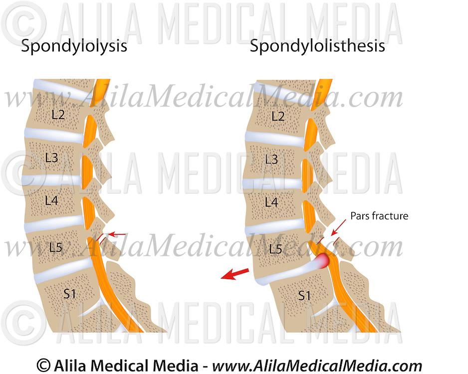 https://ssl.c.photoshelter.com/img-get2/I0000imzcwldUA5M/fit=1000x750/spondylolysis-and-spondylolisthesis.jpg