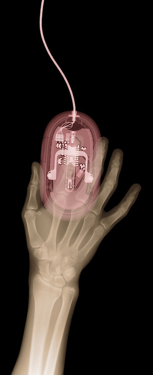 X-ray image of a hand and mouse (brown and red on black) by Jim Wehtje, specialist in x-ray art and design images.