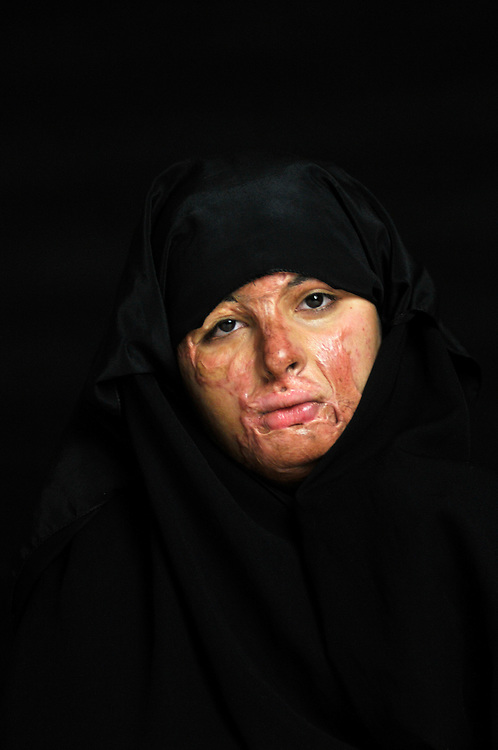 Haneen Mohammed Abdullah, 19 years old, from Baghdad, was severely burned on her face, chest, arms and hands in 2009 when she jumped out of her family's car in front of a well known ice cream parlor to buy some ice cream and a bomb exploded in front of the shop..Amman, Jordan. 02/12/2011..Photo © J.B. Russell