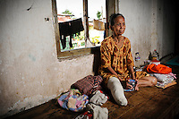 Ibu Sani 70 years has been in Jongaya for over 30 years.  She is originally from Bone in Sulawesi where she lived with her family, but when she was 40 years old she discovered she was infected with leprosy and moved to Jongaya.  She lost her leg 20 years ago as a result of the disease.  She now lives with Ibu Mida and Ibu Nuria at a shelter for older people.  Her family from Bone still come and visit her at the shelter.