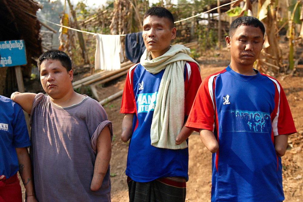 Mo Gee (left), age 32, Mr. Saw Taw (center), age 40, and Mr. Pahco (right), age 31, at the Karen Handicapped Welfare Association (KHWA), Mae La refugee camp, Thailand, Tuesday, March 27, 2007. ..Mo Gee lost his arms and eye sight in 1996 as a Karen National Liberation Army (KNLA) soldier on the front line trying to disarm a Burmese Army/SPDC landmine.  Came to Thailand in 1996-97 and treated at Mae Sot Hospital and by MSF...Saw Taw lost his arms and eye sight in November 2002 as a soldier in the KNLA trying to disarm a landmine...Mr. Pahco lost his hands and eyesight trying to disarm a Karen National Liberation Army (KNLA) landmine.  The accident happened 9 years ago when he was a soldier in the KNLA.  He has been at Karen Handicapped Welfare Association KHWA since it started in 2002.