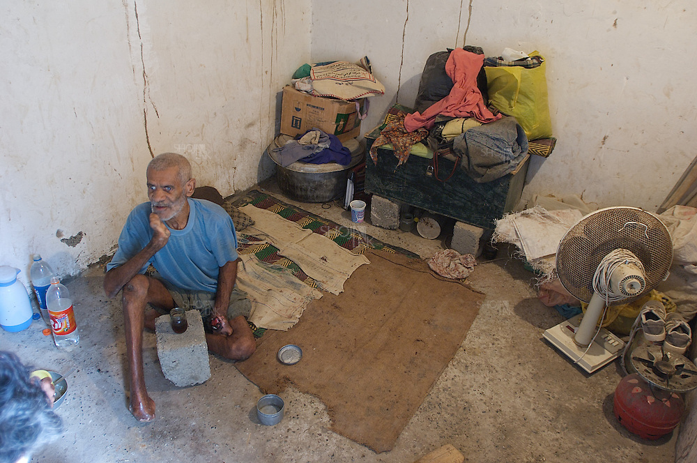 Iran. Minab. April 2008. An infected man to leprosy disease. he lives in poverty. he lost his fingers, feet and his sight.