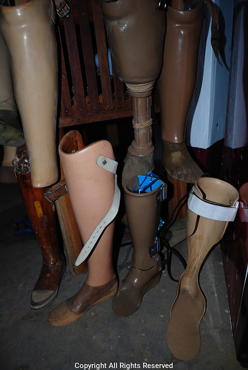 Old artificial limbs the Mine advisory group (MAG) and Cooperative Orthotic and Prosthetic Enterprise (COPE) projects there detailing the effects and ongoing fight again unexploded ordnance.