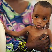 Hassan Ali (9 months), in the stabilisation centre at the Lamorde National Hospital in Niamey, Niger on 26 February 2012, where he is being treated for severe acute malnutrition.
