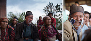 Pullahari Monastery on the outskirts of the Kathmandu Vally Nepal 2014. Lapka Tamang 82 before and after surgery. © Michael Amendolia