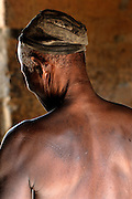 Benin, Natitingou April 20, 2005 - Old man with scarification on his back. Scarification is used as a form of initiation into adulthood, beauty and a sign of a village, tribe, and clan.