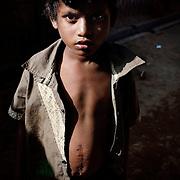 Rohingya Utvalg