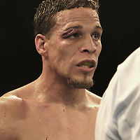 "Jonathan Oquendo is seen with a gash over his right eye during the ""Boxeo Telemundo"" boxing match at the Kissimmee Civic Center on Friday, March 14, 2014 in Kissimmme, Florida. (Photo/Alex Menendez)"