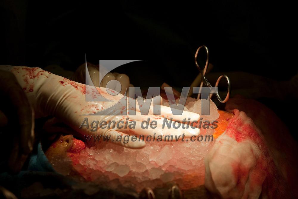 Toluca, Mex.- Un equipo de medicos procuran, para ser transplantados, dos rinones y dos corneas en el quirofano del centro medico Adolfo Lopez Mateos. Agencia MVT / Mario Vazquez de la Torre.