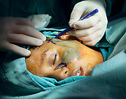 A surgeon prepares a hairy nevus' patient's surgery by sketching the cutting lines before beginning.