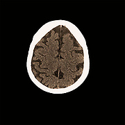 Head CT scan of an 85 year old female patient with signs of dementia