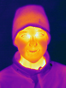 A Thermogram of a young boy with a hat.  This image was taken in winter.  The different colors represent different temperatures on the object. The lightest colors are the hottest temperatures, while the darker colors represent a cooler temperature.  Thermography uses special cameras that can detect light in the far-infrared range of the electromagnetic spectrum (900?14,000 nanometers or 0.9?14 µm) and creates an  image of the objects temperature..