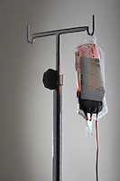 Drip bag with blood on stand against white background