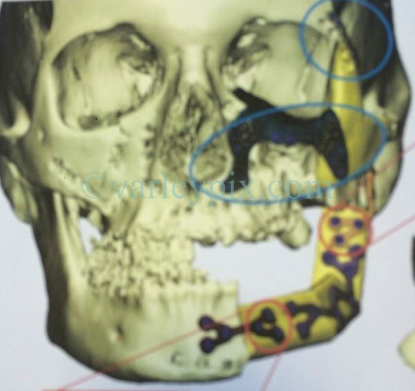 17 January 2019. Paris, France.<br /> Before, during and after attack collect photos of Gaëlle Chevalier - survivor of the 2015 Bataclan Terror attack in Paris. Collect image of reconstructive surgery required to Gaelle's skull. <br /> Gaëlle talks of her life as she continues to recover from the horrific injuries she sustained when she was shot in the face and arm during the horrific attack. The 37 year old has lost count of the number of operations to recover her smile, she thinks it could be as many as 25 operations since the attack. <br /> Collect photos courtesy Gaëlle Chevalier/varleypix.com