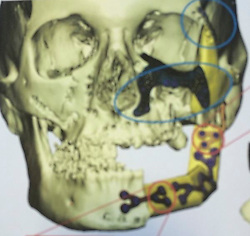 17 January 2019. Paris, France.<br /> Before, during and after attack collect photos of Ga&euml;lle Chevalier - survivor of the 2015 Bataclan Terror attack in Paris. Collect image of reconstructive surgery required to Gaelle's skull. <br /> Ga&euml;lle talks of her life as she continues to recover from the horrific injuries she sustained when she was shot in the face and arm during the horrific attack. The 37 year old has lost count of the number of operations to recover her smile, she thinks it could be as many as 25 operations since the attack. <br /> Collect photos courtesy Ga&euml;lle Chevalier/varleypix.com