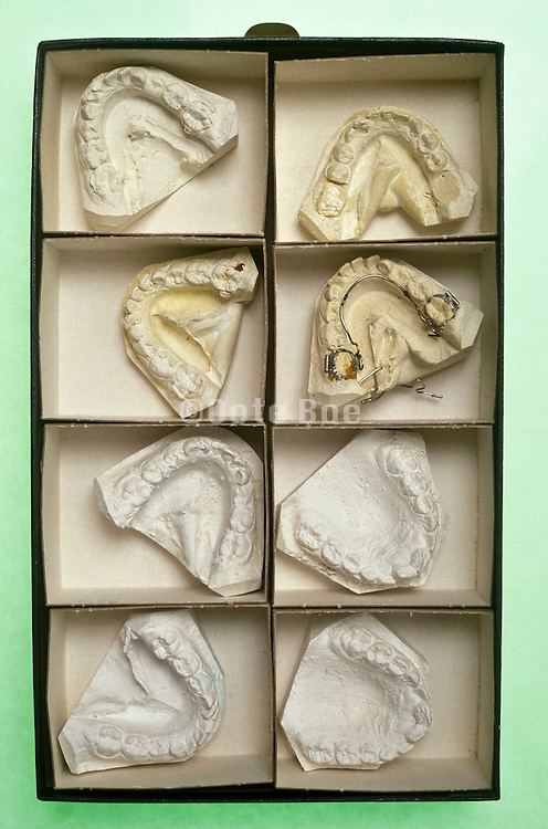 box containing molds of teeth