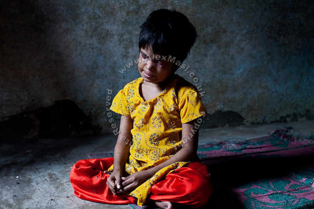 After having received a medication to her infected eyes, Neha, 7, is sitting on the floor of her home in Indira Nagar, near the abandoned Union Carbide (now DOW Chemical) industrial complex in Bhopal, Madhya Pradesh, central India, site of the infamous 1984 gas tragedy. Neha was born blind, suffering from a neurological disorder, and due to the insufficient care she regularly receives, she developed an eyes and skin infection, and severe malnutrition. Neha shares a single room with no windows with three sisters and one younger brother: Bushra, 14, a girl affected by down syndrome, Nisha, 12, Fiza, 17 and Sohel, 9. Their father left their home in September 2013 and never contacted them anymore; their mother died in 2011. In 1984 she survived the poisonous gas cloud that enveloped Bhopal, leaving everlasting consequences that today continue to consume people's lives.