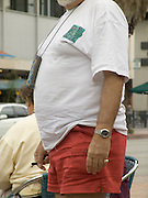 overweight persons belly seen from the side