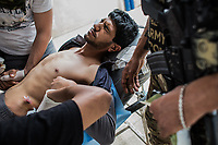 A man who got wounded by shrapnel is treated at a field hospital in West Mosul, Iraq.<br /> <br /> モスル西部の野戦病院で治療を受ける、迫撃砲の破片で負傷した男性。2017年5月撮影。