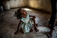 "OCUMARE DEL TUY, VENEZUELA - OCTOBER 11, 2017: Marianyerlis Acosta, 6, follows her mother María Carolina Merchán around for hours wailing and sobbing, begging her to give her food. Marianyerlis' weight fluctuates between 19-26 pounds, depending on how much food she is able to secure. The CDC categorizes 6 year old girls weighing less than 35 pounds in the lowest fifth percentile for their age. Ms. Merchán fears for her daughter's life. She recently fainted after going two days without eating. Six weeks after Ms. Merchán's youngest son, 17-month-old Kenyerber Aquino Merchán died from heart failure caused by severe malnutrition, his family is still struggling with hunger on a daily basis, and his grandmother, his mother and his 6-year old sister have all been diagnosed with malnutrition as well. The family passes up to five days at a time without eating anything - only drinking water to ease their hunger pangs. The only food in the entire house is half a bag of salt, and one lime. María Carolina stares blankly at the floor as Marianyerlis cries, feeling helpless. ""I cannot help them, I cannot work,"" she said. ""I wanted to work, to be able provide for my children - everything they need, but no - I can't at all."" Ms. Merchán got infected by the Zika virus when Kenyerber was three months old. She had to be hospitalized when she fell ill to the Zika related Guillain-Barré Syndrome - that caused her to lose muscle function in her arms and legs making it difficult for her to walk, and impossible to find work. She often skips meals, so that her children have more to eat. She has wilted down to weigh only 66 lbs, but says she does not care about her own well being, just that of her children. ""I close myself in my bedroom to cry and cry because the children have not eaten, and there is nothing I can do about it,"" she said. PHOTO: Meridith Kohut for The New York Times"