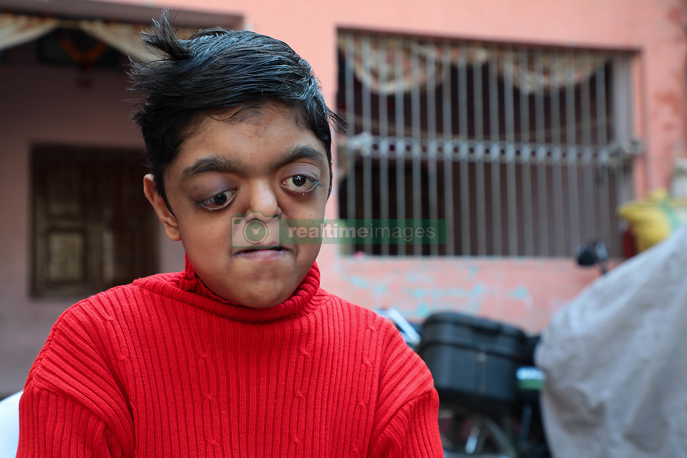 EXCLUSIVE: Boy with webbed fingers, toes treated like a pariah in the neighborhood and at school, poor parents pin hope on crowdfunding to get their child treated By Sanjay Pandey in India Twelve-year-old Mannu Kumar is treated like a pariah in his neighborhood and at school because of his appearance. Mannu, standard III student, cannot run around like a regular boy of his age. He can't use hands for eating or any other purpose, nor can he wear shoes or slippers. Mannu suffers from Syndactyly, a rare genetic condition, because of which his hands and feet are fused-like. The disease causes abnormal fusion of hands and feet. The rare condition only affects one in 10 lakh people. Mannu, who hails from the Koderma of the east Indian state of Jharkhand, is the eldest child of Anand Kumar, a small-time grocery shop owner, and Rani Devi, a housewife. Mannu also has one sister and the medical expenses of his condition are quite a burden on the family. His parents have spent a fortune on his treatment in the last two years. They have sold family property and jewelry to arrange funds for the boy's medication and diagnosis. Since his parents are uneducated they couldn't pick on the early signs of the disease and his diagnosis was made only this year in July. Now it is in an advanced stage and doctors have told them that it would take at least Rs 10 lakh for reconstructing Mannu's hands and feet. Doctors informed the parents that the estimated cost of treatment, including neuro and plastic surgery procedures, would come to approximately Rs 10 lakh. Moreover, the family would have to shell out Rs 5 lakh for the treatment process to begin. Since the family has already exhausted all their resources in the last two years, on the boy's medication, they have started a fundraiser to raise money for his further treatment. His mother Devi said: 'It is the curse of the God that my son was born like this and I am worried about his future. 'I'm afraid he might struggle to lead a no