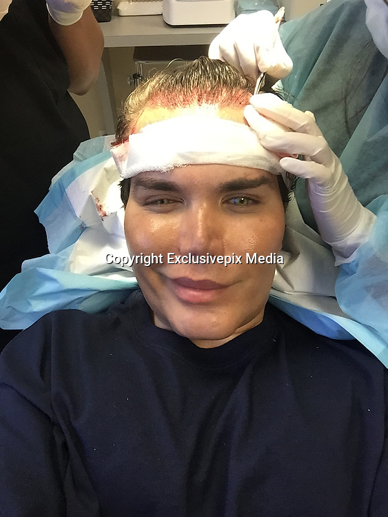 Exclusive Now The Human Ken Doll Has A Hair Transplant To Restore