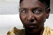 Fred Hollows Foundation Trachoma Program work in Jimma region of southern Ethiopia. Fatuma Abazinab, 40 rides her horse out with after having trachiasis surgery Fatuma is legally blind (could not see fingers one metre away). Milky eyes. Completely preventable. She has two children and came from 5km away – 1 hour by horse.