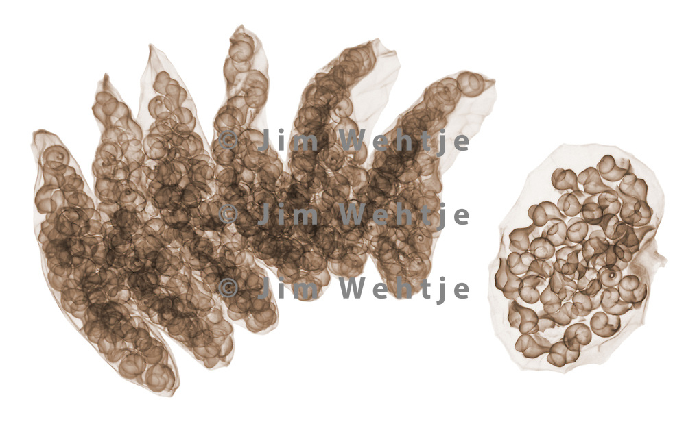 X-ray image of egg cases of a channeled whelk (color on white) by Jim Wehtje, specialist in x-ray art and design images.
