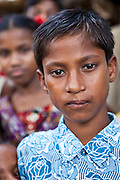 Abdul, aged 12, received Cleft Palate Surgery in 2002 at the IFB Chuandanga Hospital in the western region of Bangladesh. .Impact Foundation Bangladesh (IFB) provide care, support and treatment to people with disabilities in Bangladesh.