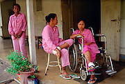 Patients at Sitanala Leprosy Hospital  in Jakarta, Indonesia