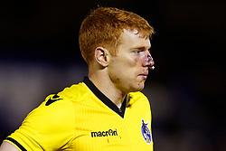 Rory Gaffney of Bristol Rovers suffers a nose injury - Mandatory by-line: Matt McNulty/JMP - 14/03/2017 - FOOTBALL - Gigg Lane - Bury, England - Bury v Bristol Rovers - Sky Bet League One