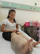 ZHENGZHOU, CHINA - AUGUST 19: (CHINA OUT)<br /> <br /> A Girl Has A Big Leg<br /> <br /> A doctor checks Sun Jingjing\'s leg at Armed Police Corps Hospital of Henan on June 20, 2013 in Zhengzhou, Henan Province of China. 22-year-old Sun Jingjing, who was born with congenital angiolipoma in her right leg, underwent a leg-amputation surgery on July 23. And the hospital will offer her a prosthesis free of charge in three months. Sun Jingjing comes from a poor family in Baibi town of Anyang city, Henan province. She had never received any adequate treatment before, the circumference of her right leg was 85cm when her story was published by local media two months ago. Her father died by uremia 12 years ago, and her mother is suffering from esophageal cancer. They live on subsistence allowance from the local government. <br /> ©Exclusivepix