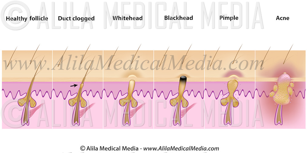 Formation of skin blackhead, whitehead, pimples and acne. | Alila ...