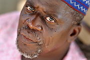 Benin, Natitingou February 28, 2006 - Man with tribal scarification on his face. Scarification is used as a form of initiation into adulthood, beauty and a sign of a village, tribe, and clan.