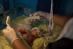 "A newborn child of a 14-year-old mother is treated in the ICU of Hospital San Benito. The baby boy was born premature and only weighed only 1.3 kilos. ""He is still very small and not physically ready yet. His chest muscles get tired very quickly so we cannot remove the tube until he gains some weight,"" said pediatrician Dr. Jessica Gonzales. ""The mom being only 14 years... really they don't know what they are facing."""