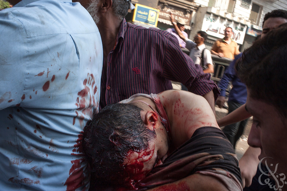 """Supporters of deposed Egyptian President Mohamed Morsi evacuate a critically wounded protestor with a gunshot to the head from the frontline of intense street clashes near Ramsis Square during the August 16, 2014 """"Day of Rage"""" protests in Cairo, Egypt."""