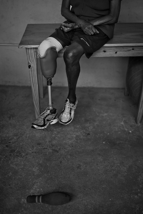 Denise Bony Joseph, 68 yrs old, lost her right leg to Diabetes, rests during physical therapy at Healing Hands Haiti Clinic. <br /> <br /> Healing Hands Haiti (HHH) in Port Au Prince has been established for 12 years since 1999. Currently, HHH is constructing a new facility in Port Au Prince because their old clinic was destroyed from the earthquake.   HHH provides physical therapy, counseling, prosthetics, and support for free or very little cost to Haitians.  Their funding comes from private donations and organizations such as Handicap International, Mission Europeene Aide Humanitarian, International Committee of the Red Cross (ICRC), American Red Cross, Newman's Own, Direct Relief International (DRI), SOROS Open Society Foundation, and USAID which pays for employees, doctors, supplies, and facilities.  The motto of HHH is &quot;to serve the people of Haiti is to enable them to help themselves.&quot;   Thus, most of their employees are Haitians with very few foreign expats. Furthermore, HHH recruits and teaches young Haitian students prosthetic and orthotic skills and physical therapy in a specialized program that will enable them to earn a degree approved by World Health Organization.