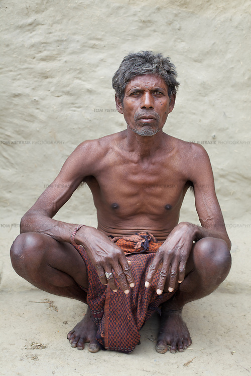 Ramu Mandal is one of many underweight and vulnerable residents in Bankat village. Some form of paralysis in his left leg has rendered Ramu unable to work for the past ten years. He had previously been an agricultural laborer. Ramu is entitled to monthly rations under the Antyodaya scheme (providing staple food for the poorest of the poor) as part of the PDS (Public Distribution System) but corruption means he is not regularly provided such food. Like much of rural Bihar state - particularly among low caste communities - the residents of Bankat regularly go hungry. Ramu's neighbour Chandu Bhuiyan, died of hunger on February 14th 2011.<br /> <br /> Experts including the JSS (Jan Swasthya Sahyog or People's Health Support Group) argue that even when the PDS is administered properly, it needs to be extended. This is because the monthly allocation of subsidized grain will last the average family just 12 days.<br /> <br /> Photo: Tom Pietrasik<br /> Bankat village, Amas Block, Gaya District, Bihar. India<br /> February 25th 2011