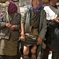 A tibetan woman show how her legs has been deformed since she  was affected by the Kashin-Beck Disease. Narme, Tibet, China. April 14, 2007. Photo: Bernardo De Niz