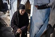 Flygtningelejr i Jeb Jenin. Kvinde med kraftige smerter i benene.<br /> <br /> <br /> Refugee settelment in Jeb Jenin.