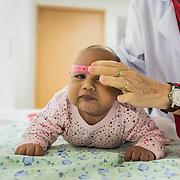 A neurologist examines and measures an infant with microcephaly at the rehabilitation center FAV (Fundação Atilio Valente) in Recife, Pernambuco
