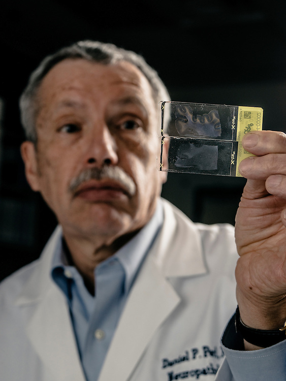 Dr. Daniel Perl compares damaged brain tissue to control samples at his lab in Rockville, MD.