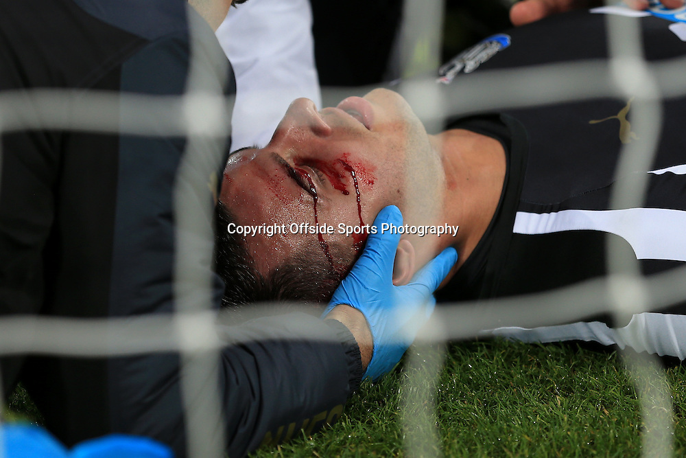 21st December 2014 - Barclays Premier League - Newcastle United v Sunderland - Blood pours from a cut to the face of Steven Taylor of Newcastle - Photo: Simon Stacpoole / Offside.