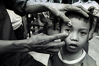 Tran Van Giap and his father shows the eye examined by Fred Hollows in 1992 in the courtyard of the Hanoi Institute of Opthlamology.