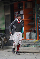 A victim is seen at the site of a suicide car bombing in Kabul, Afghanistan, on Jan. 16, 2013. A powerful blast rocked Afghan capital Kabul on Wednesday leaving over a dozen dead and injured, an eye witness said,  January 16, 2013. Photo by Imago / i-Images...UK ONLY