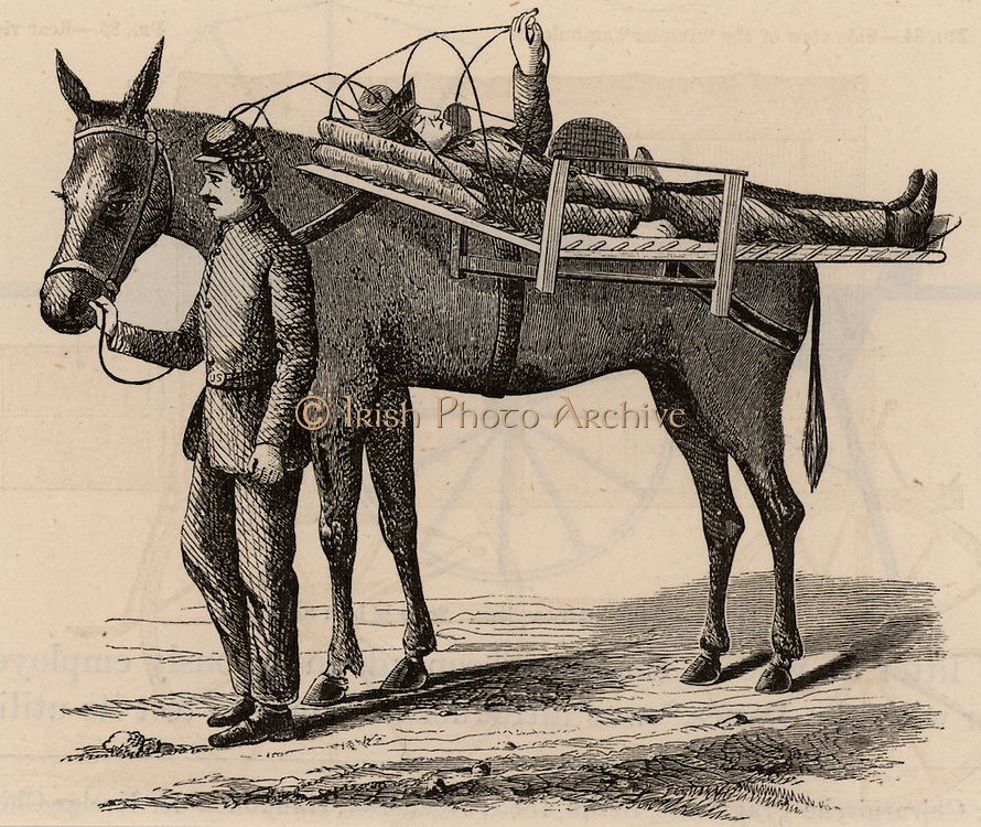 American Civil War 1861-1865. Casualty being transported by horse litter. Wood engraving 1865.