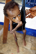 A Lieberian boy suffering from severe malnutrition is weighed at the Action Contre La Faim (Action without Anger), theraputic feeding centre for the treatment of severe malnutrition, Monrovia 02 August 2003. The French aid organistation has been in Liberia since 1991 and says emergency food supplies are available here but the other moderate theraputic clinics have only 2 weeks worth of food. The World Food Programme food store has some 10 000 tons of food but is not accesible due to it being in rebel controlled teritory in Freeport, Monrovia.<br /> EPA PHOTO/NIC BOTHMA