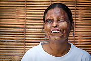 STOP ACID ATTACKS<br />