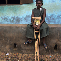 Children with polio attend regular school in a <br /> programme organised by Leonard Cheshire International .Aminata Mustapha.